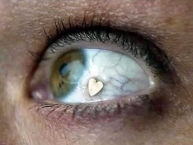 extraocular-implants